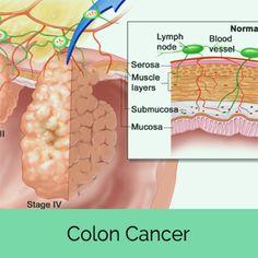 how to detect colon cancer symptoms