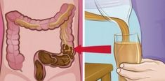 Most experts would agree that a regular colon cleanse program can ensure a better way of living. They believe that other forms of colon cleansing such as colon Natural Cancer Cures, Natural Home Remedies, Colon Irritable, Troubles Digestifs, Colon Cleanse Detox, How Do You Clean, Lose 30 Pounds, Natural Cleaning Products, Cleanser
