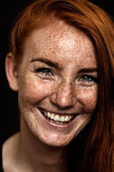 We Are Freckled: Swedish Photographer Captured 100+ Beautifully Freckled People | Bored Panda