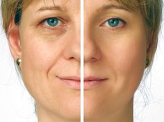 """Latest Report on """"Global Dermal Fillers Market Professional Survey Market"""" Covers Industry Statistics, future prospects, Segmentation and Applications."""