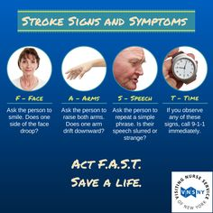 Know the signs and symptoms of Act FAST. Act Fast, Signs And Symptoms, Live Long, For Your Health, Caregiver, Infographics, Brain, Information Graphics, The Brain