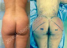 750 mL buttock augmentation performed by Dr. Dandelvecchio, world famous fat transplantation surgeon www.Backbayplasticsurgery.com