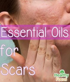 Top 10 Essential Oils for Scars - Healthy Focus