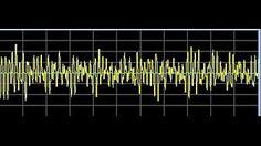 Abscesses - RIFE Frequencies Treatment - Energy & Quantum Medicine with Bioresonance - YouTube