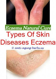 1 guidance atopic eczema in under 12s diagnosis and - 235×330