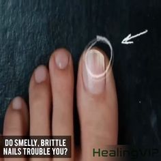😍This Bio-Pen Restores Shiny Natural Beauty To Fungal Nails!💅✨ ✅Anti-Fungal ✅Fast Acting ❌Side Effects For brighter, healthier looking nails, trust this Onychomycosis Repair Pen to do the job. Toe Fungus, Nail Fungus, Fungus Toenails, Glow Nails, Nail Repair, Nail Growth, Brittle Nails, Coffin Shape Nails, Natural Health Remedies