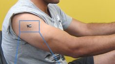The tattoo biosensor for monitoring lactate levels that has been converted into a sweat-po...