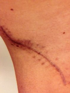 melanoma scar....yep it's more than having a mole removed
