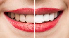 El blanqueamiento interno en dientes no vitales es un tratamiento dentro de la estética dental que se realiza en dientes que se han oscurecido.
