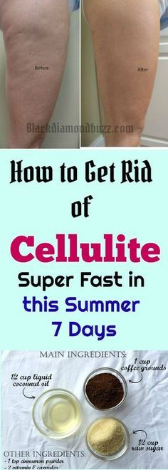 This is How to get rid of cellulite on the legs, thighs and buttocks super fast this summer in 7 days with these active powerful coffee scrub and body wraps .