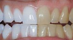 This Turmeric Anti-Inflammatory Paste Will Reverse Gum Disease, Swelling, And Kill Bacteria - Healthy Holistic Living (Burn Belly Fat Fast Home Remedies) Health And Beauty Tips, Health Tips, Health And Wellness, Health Fitness, Workout Fitness, Turmeric Anti Inflammatory, Healthy Holistic Living, Healthy Teeth, Natural Home Remedies