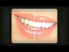 Remedios Caseros Para el Blanqueamiento de Dientes - http://solucionparaelacne.org/blog/remedios-caseros-para-el-blanqueamiento-de-dientes/