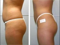 Cellulite? Get Rid of Cellulite Naturally. Before and After Photos.