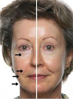 Finally the Secret revealed from http://alternative-botox.blogspot.co.id/2015/10/anti-aging-product-as-botox-alternative.html    BEFORE AND AFTER Natural anti Aging