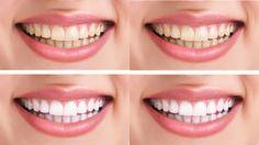 Dentes Perfeitos: Clareamento Dental