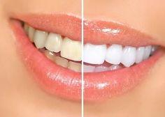 lastuce du jour un blanchiment des dents chez soi grce 4 ingrdients naturels - Coloration Vgtale Sans Henn