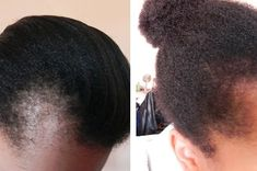 If you're planning to use emu oil for hair loss or hair growth, learn more about the production processes & the lack of data supporting hair care benefits. Pelo Natural, Natural Hair Tips, Natural Hair Growth, Natural Hair Journey, Natural Hair Styles, Going Natural, Color Ombre Hair, Bald Hair, 4c Hair