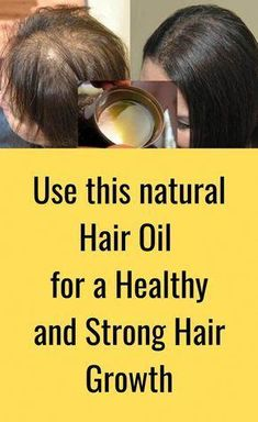 Here's good news! I've discovered an amazing Leech oil by Nature sure which is formulated with an incredible formula to treat hair problems. Read on to know more about this hair oil. #NormalHairLoss Argan Oil For Hair Loss, Biotin For Hair Loss, Hair Loss Shampoo, Biotin Hair, Normal Hair Loss, Why Hair Loss, Prevent Hair Loss, Best Facial Hair Removal, Best Hair Loss Treatment