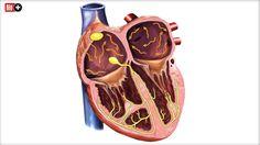 STOLPERN, RASEN, FLIMMERN So entstehen Herz-Rhythmus-Störungen