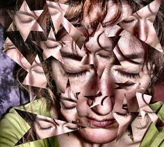 Migraine: Causes & Treatment