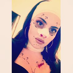 Plastic surgery botched face Halloween makeup costume 2017 - blood,latex