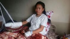 Shame on Sikkims Private Pharmaceutical Company Sharda Boiron Laboratories Ltd   Only bread earner Asha Subba 23 years of age hailing from Majhitar East Sikkim residing opposite of Petrol Pump recently met an accident at her Pharmaceutical Company Sharda Boiron Laboratories Limited attached with Himalayan Distilleries near Majhitar Secondary School where she lost her two fingers under machine during duty some days back.  Note : Matter came to notice of social activist on 18 Sep only.  She's…