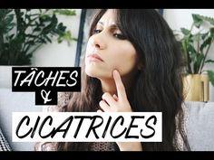 ROUTINE NATURELLE CICATRICES & TÂCHES D'ACNE | Naturellement Lyla l Blog beauté naturelle, Mode et Lifestyle