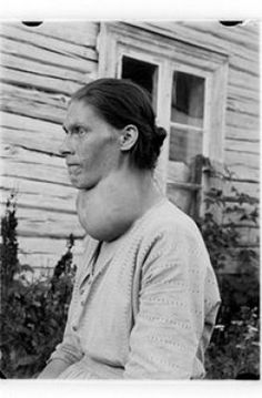 A woman, probably from inland of Norway, with goiter, probably due to iodine deficiency. Even in Norway Iodine Deficiency, Medical Photos, Human Oddities, Good Manufacturing Practice, Female Profile, Endocrine System, Holistic Remedies, Medical History, Hypothyroidism