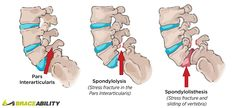 What's the difference between spondylolysis & spondylolisthesis? Spondylolyis is when there is a separation in one of the vertebrates in your spine. Whereas, spondylolisthesis refers when one of your bones in your vertebra slides forward over the bone next to it. Learn more about each condition! | BraceAbility