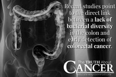 Learn about exciting new research into a new, non-invasive colorectal cancer screening method. Pin to save for later! // The Truth About Cancer