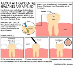 A look at how dental sealants are applied www.giedentallalb.com