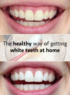 Having healthy white teeth is more of a necessity nowadays. I will tell you the tricks I learnt from my dentist and show you the results I got.