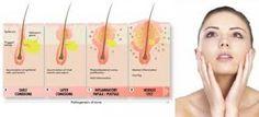 Rimedi naturali per combattere acne e punti neri   Viverenews