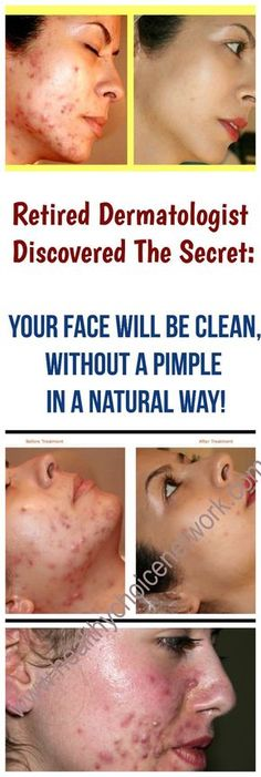 Acne and Acne Remedies. All-natural means to eliminate as well as avoid Acne. Belleza Diy, Acne Face Mask, Face Masks, Skin Tag Removal, Beauty Secrets, Beauty Tips, Beauty Hacks, Beauty Care, Pimples