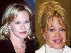 Melanie Griffith - another compete moron...............