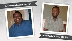 Before After RNY Gastric Bypass