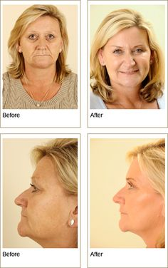 Tripolar Radiofrequency Non Surgical Lifting. Organic Skin Care, Natural Skin Care, Radio Frequency Skin Tightening, Skin Tightening Cream, Beauty Hacks Skincare, Beauty Tips, Eyeshadow Tips, Health