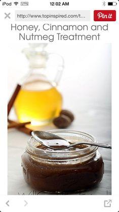 Honey, Cinnamon, & Nut Meg Treatment To Fade Acne Scars