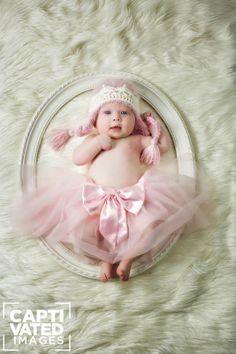 Trisomy 21 Newborn