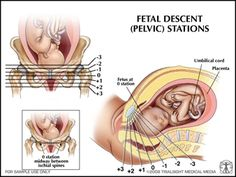 Stages of Labor and Delivery | Stages of Labor and Delivery