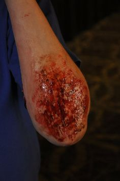 We can simulate and develop mock injuries, burn, abrasion, cut, bleeding scenarios to help participants learn to the best of their ability and under pressure and real sense of emergency.