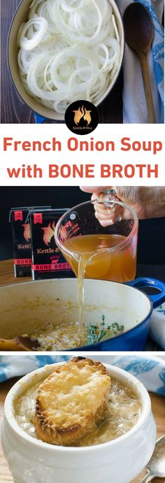 Homemade french onion soup made with organic bone broth! The best French Onion Soup with tender onions, sherry spiked beef broth and cheesy croutons! Best Soup Recipes, Healthy Soup Recipes, Beef Recipes, Cooking Recipes, Recipes With Beef Bone Broth, Beef Soup Bones, Goulash Recipes, Supper Recipes, Fast Recipes