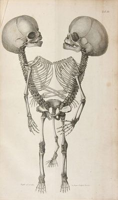 Litho Print: 1800's Conjoined Twins