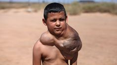 Boy With Neck Growth To Get Life-changing Surgery - Body Bizarre Episode 3 Teaser