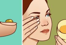 This Face Mask Magically Removes Stains, Acne Scars And Wrinkles After Second Use – Sara Beauty and Health How To Treat Eczema, How To Treat Acne, Honey Uses, Sara Beauty, How To Relieve Nausea, Flaky Scalp, Honey Benefits, Health Benefits, Home Remedies