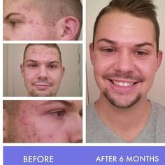 Combat acne and post-acne marks with our clinically proven Rodan + Fields UNBLEMISH acne blemish treatment regimen. Learn more about UNBLEMISH. Back Pimples, Blackheads On Nose, Acne Marks, Happy Skin, Rodan And Fields, Skin Care Regimen, Acne Treatment, Good Skin, 6 Months
