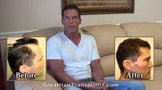 Dr. Brett Bolton hair transplant: frontal hairline