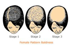 Pattern baldness is something commonly seen in men as they start aging due to heredity, medical conditions or treatments, and even stress. Many think that pattern baldness only happens to men but truth be told, women can also experience pattern baldness. According to Harvard Health Publications, female pattern baldness starts with thinning hair at the part-line...