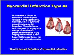 Third universal definition of Myocardial Infarction : Type Cardiovascular Nursing, Myocardial Infarction, Cardiac Nursing, Acute Care, Medical Coding, Circulatory System, Nurse Stuff, Cardiology, Student Studying