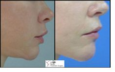 Chin augmentation also known as Mentoplasty is a type of surgical procedure that can help reshape or enhance the size and the whole look of the chin.